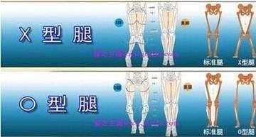 矫正腿型的软件